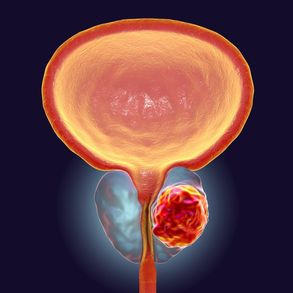 5 fatores de risco para o câncer de próstata